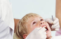 sealants stop cavities