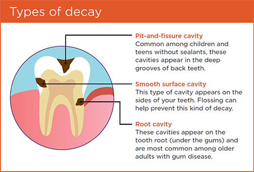 Picture illustrating various types of dental decay